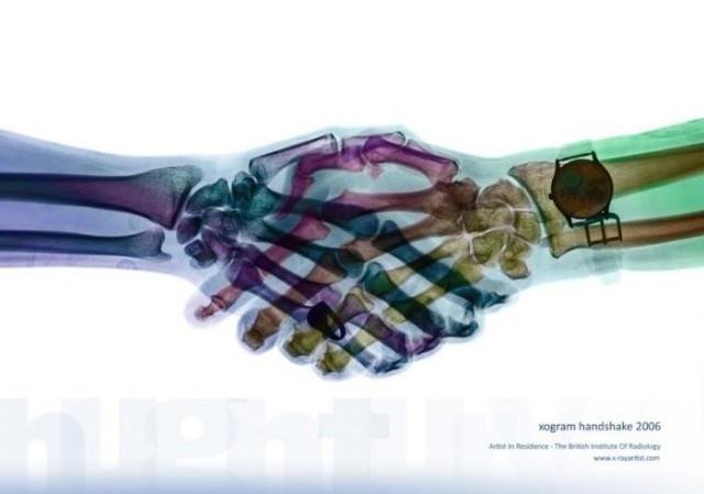 Một cái bắt tay dưới hình ảnh X-quang. Khá ấn tượng và rất thân mật phải không?,hình ảnh x-quang,cơ thể người,những điều thú vị trong cuộc sống