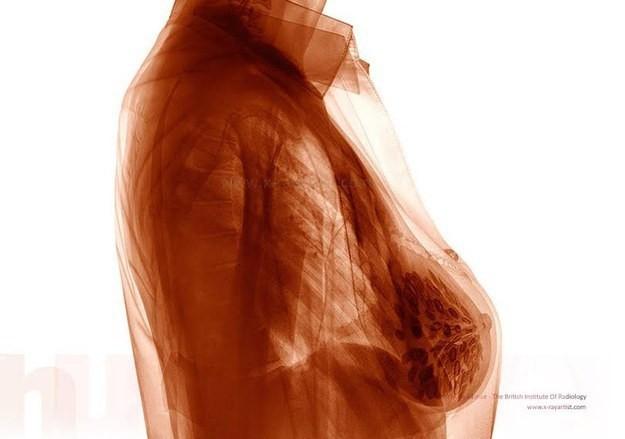 Quần áo và da có thể đột nhiên trở nên trong suốt dưới ảnh X-quang.,hình ảnh x-quang,cơ thể người,những điều thú vị trong cuộc sống