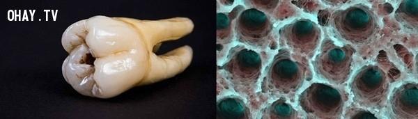 Hình ảnh phóng to của lớp ngà răng bị hỏng. Ngà răng là lớp thứ hai, sau lớp men răng,khám phá,nhìn đồ vật dưới kính hiển vi