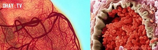 Hình ảnh một túi động mạch dưới kính hiển vi, túi động mạch này gặp phải vấn đề khá nghiêm trọng vì các tế bào máu bị vỡ.,khám phá,nhìn đồ vật dưới kính hiển vi