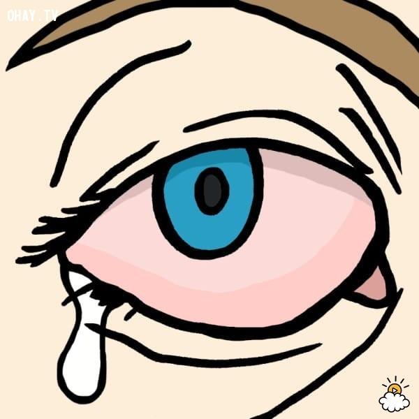 Loại 2: đau mắt đỏ do virus,đau mắt đỏ,chữa đau mắt đỏ tại nhà