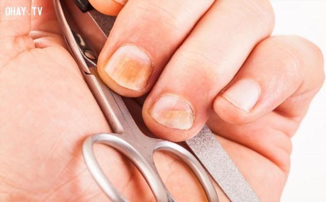 Khoảng 10% các vấn đề da liễu có liên quan tới móng,móng tay