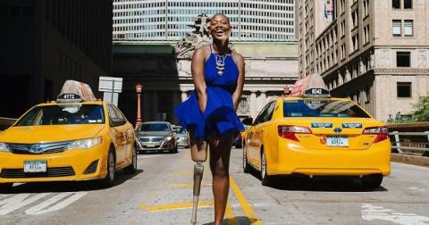 Cụt một chân, cô ấy đã trở thành Blogger nổi tiếng về thời trang như thế nào?