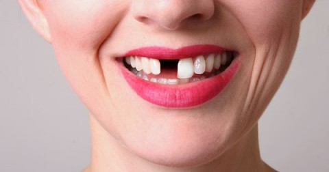 Bạn đã bao giờ gặp ác mộng bị rụng răng? Điều này có nghĩa là…