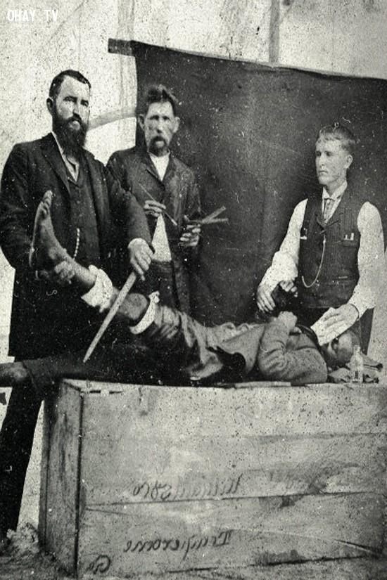 Bác sĩ phẫu thuật ngày xưa không giống như các bác sĩ ngày nay mà chúng ta hay nhìn thấy,dụng cụ y tế,lịch sử y học
