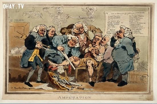Dao cắt cụt đã được phổ biến trong thời đại Victoria,dụng cụ y tế,lịch sử y học
