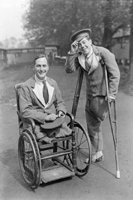 Cắt cụt là một biện pháp phổ biến trong Thế chiến I khi các binh sĩ bị thương.,dụng cụ y tế,lịch sử y học