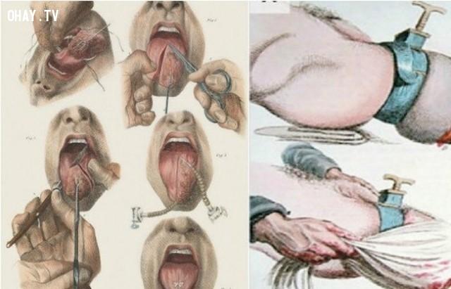Các thiết bị này gây ra rất nhiều đau đớn cho bệnh nhân, họ thường chọn cách chết vì căn bệnh của mình hơn là phải chịu đựng đau đớn,dụng cụ y tế,lịch sử y học