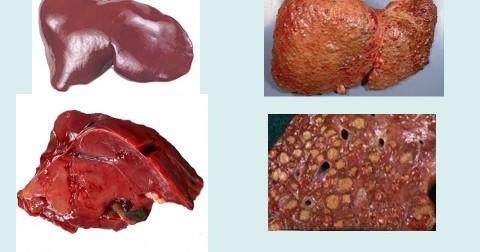 5 triệu chứng thường gặp của bệnh xơ gan