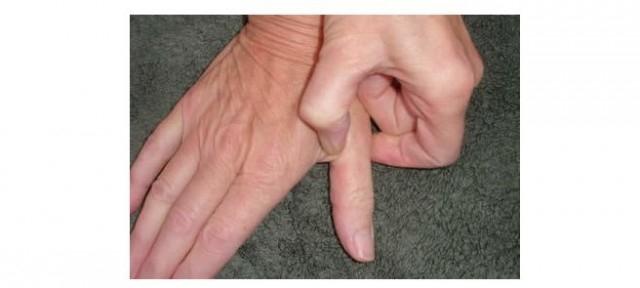 Xoa bóp ngón tay cái