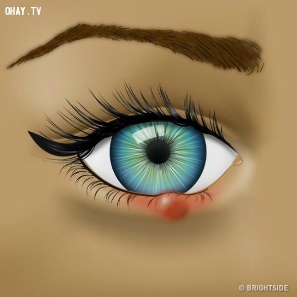 1. Mụn lẹo trên mắt kéo dài,đôi mắt,bệnh về mắt,sức khỏe