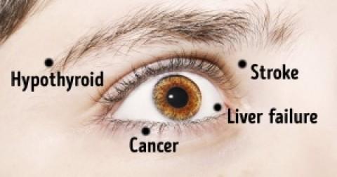 Những dấu hiệu bất thường ờ mắt mà bạn không nên bỏ qua