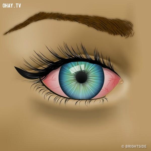 3. Mờ mắt,đôi mắt,bệnh về mắt,sức khỏe