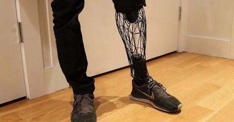 Công nghệ làm chân giả 3D siêu thật và siêu rẻ