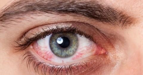 12 dấu hiệu sức khỏe qua đôi mắt của bạn