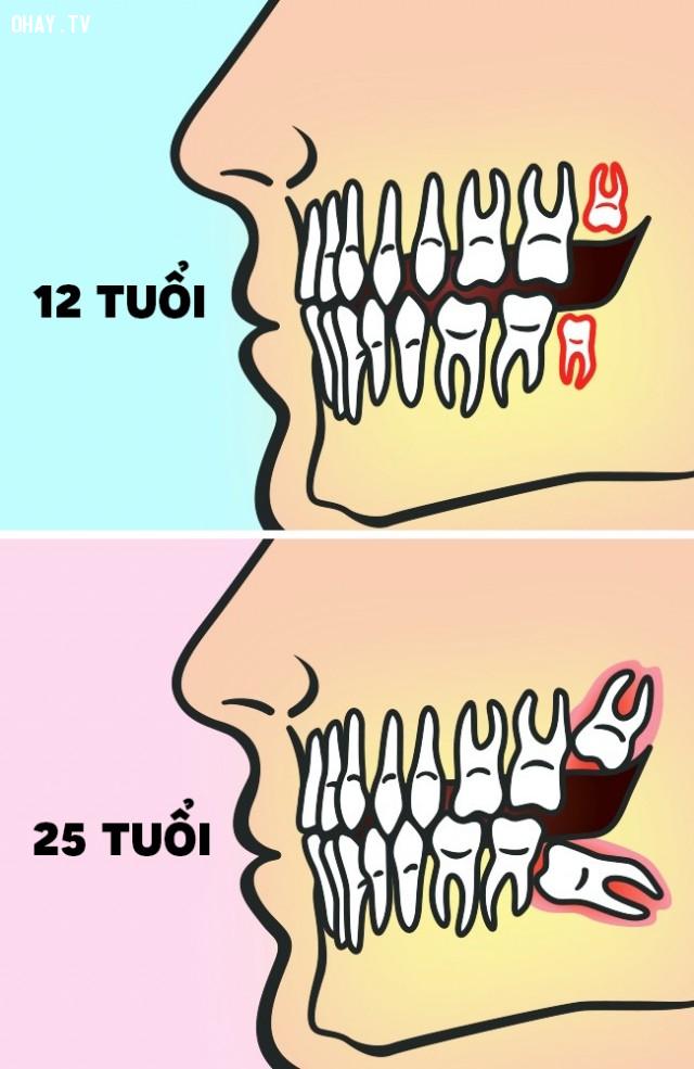 ,nhổ răng khôn,mọc răng khôn,có nên nhổ răng khôn,sức khỏe răng miệng,chăm sóc răng miệng