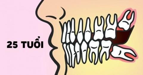 Thấy răng khôn, chớ dại mà nhổ ngay!