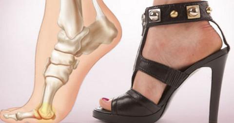 Đây là lý do bạn không nên đi giày cao gót nhiều