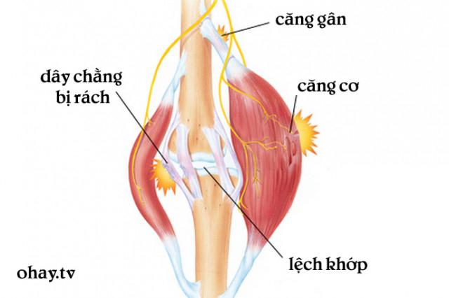 3. Căng cơ ,tập thể hình,căng cơ