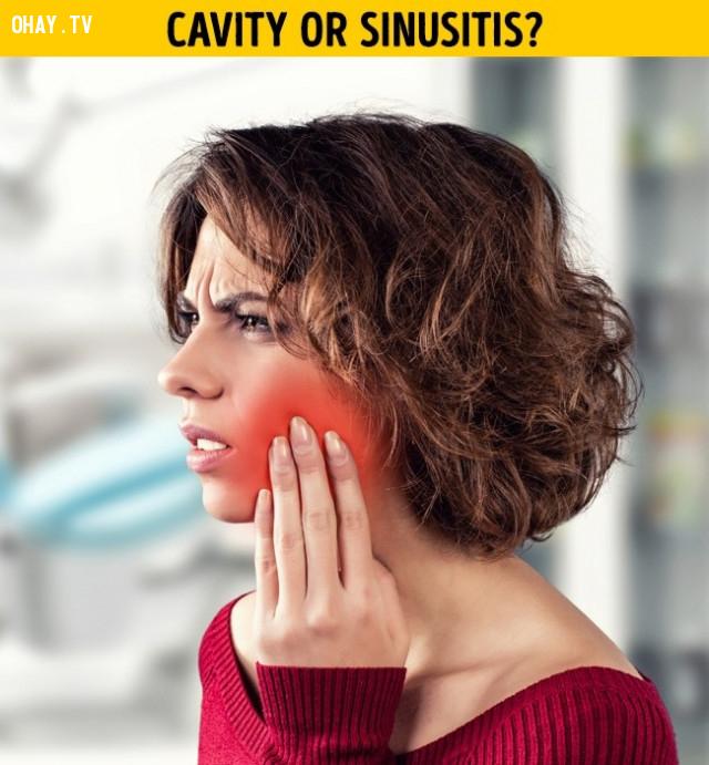 Đau răng không có nghĩa là sâu răng,vệ sinh răng miệng,đánh răng,phòng sâu răng,đau răng,mọc răng khôn