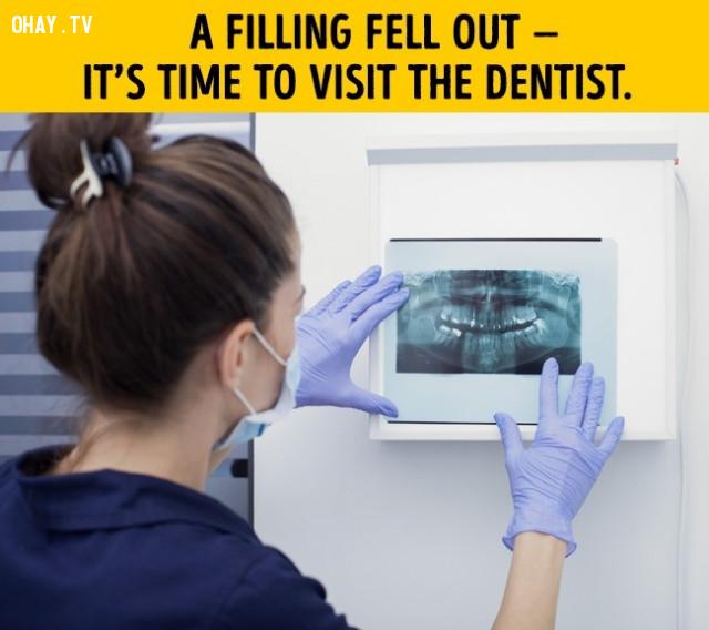 Nếu phần trám răng sâu bung ra, chỉ cần bít lại,vệ sinh răng miệng,đánh răng,phòng sâu răng,đau răng,mọc răng khôn