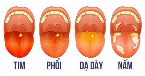 13 màu sắc lưỡi cho biết bạn đang mắc bệnh nguy hiểm