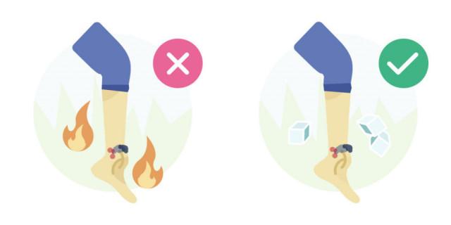 Sai lầm # 4: Sử dụng nhiệt trong trường hợp bong gân.,sơ cứu,sai lầm cần tránh