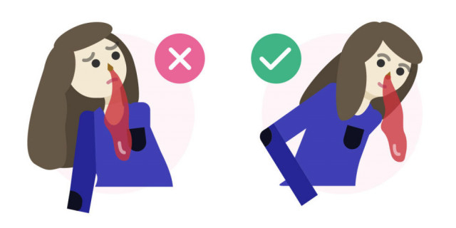 Sai lầm # 3: Ngả người về phía sau khi bị chảy máu cam,sơ cứu,sai lầm cần tránh