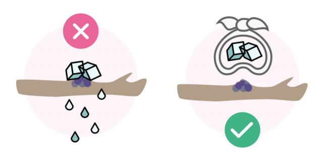Sai lầm # 1: Chườm đá trực tiếp lên vết bầm tím.,sơ cứu,sai lầm cần tránh