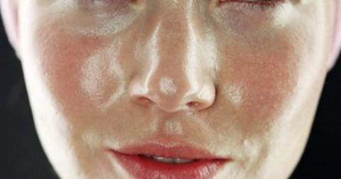 Làm đẹp : Những mẹo dành cho những người có làn da dầu ( da nhờn )