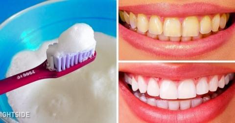 Chỉ bạn 10 cách CỰC đơn giản để có hàm răng trắng sáng tự nhiên