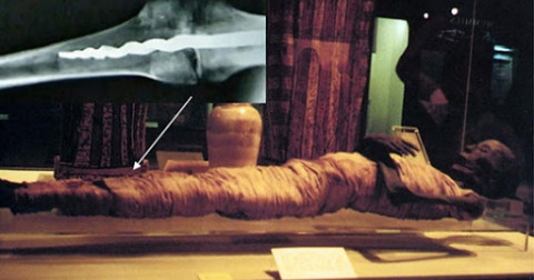 Chuyện lạ: Phát hiện ca ghép cơ thể từ 3000 năm trước