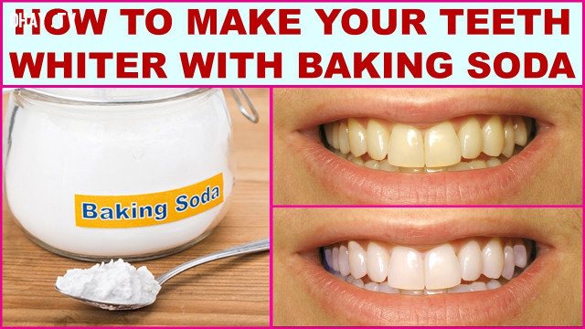 Làm trắng răng,baking soda