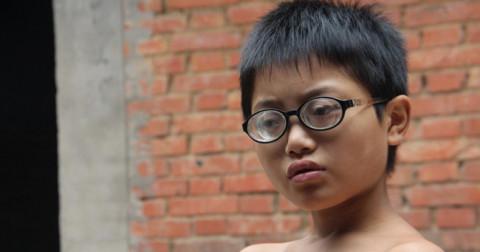 10 nguyên nhân gây suy giảm thị lực phổ biến mà chúng ta không nhận ra