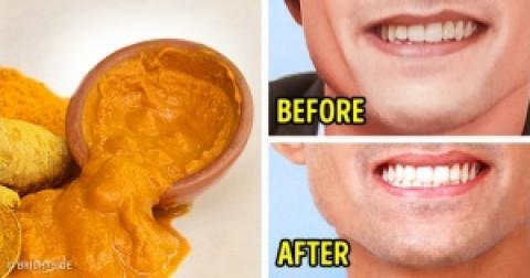 9 loại thực phẩm giúp răng bạn trắng đẹp tự nhiên
