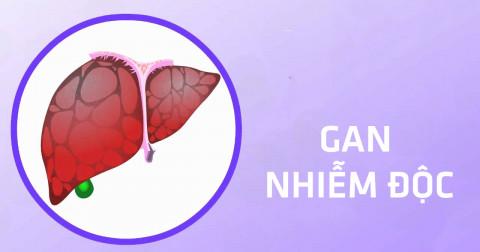6 dấu hiệu cảnh báo gan của bạn đang bị nhiễm độc