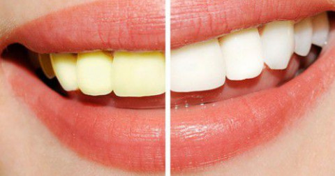 Những cách tự nhiên để loại bỏ mảng bám răng miệng hiệu quả.