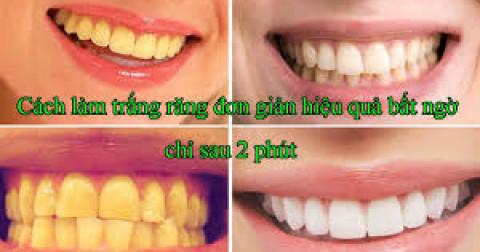 Làm trắng răng an toàn, hiệu quả bằng dầu dừa chỉ trong 2 phút