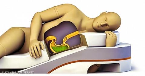 Tư thế ngủ ảnh hưởng như thế nào đến sức khỏe của bạn?