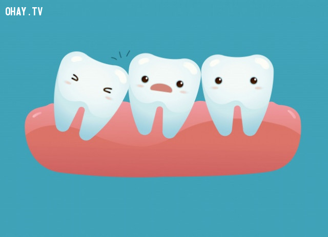 Răng khôn,cơ thể con người,sự tiến hóa
