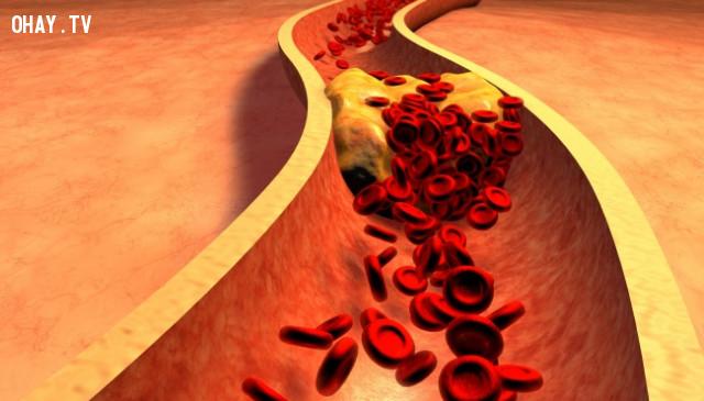 Bệnh động mạch vành,kỹ năng sinh tồn