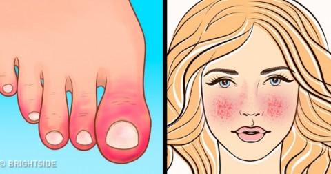 10 dấu hiệu cho biết chức năng hệ miễn dịch của bạn đang gặp vấn đề