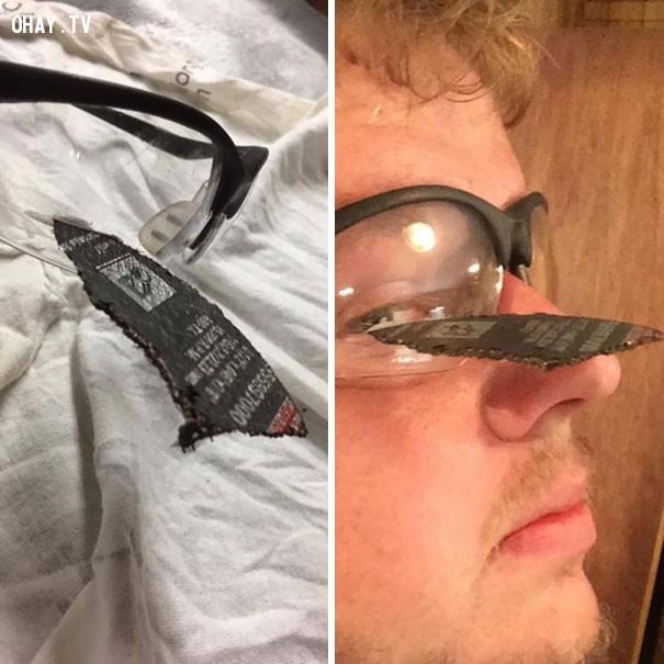 3. Không có kính bảo hộ thì mảnh đĩa mài góc đã lấy đi một mắt của anh chàng này, phòng bệnh hơn chữa bệnh,người may mắn,khi thần chết ngủ quên