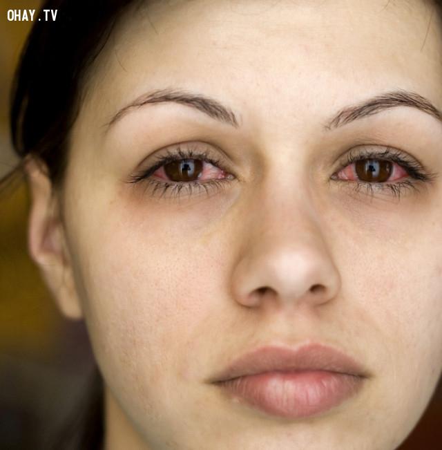 Nhiễm trùng mắt,nhiễm trùng,mẹo sức khỏe,sống khỏe,viêm xoang