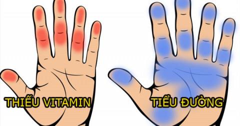 7 dấu hiệu ở bàn tay báo động về các vấn đề sức khỏe của bạn