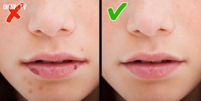Xuất hiện các vết nứt ở góc của miệng,thiếu vitamin,bổ sung vitamin