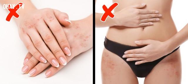 Xuất hiện các vết sẹo đỏ trên tay và hông,thiếu vitamin,bổ sung vitamin