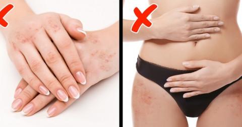 7 dấu hiệu cho biết bạn nên bổ sung Vitamin ngay lập tức