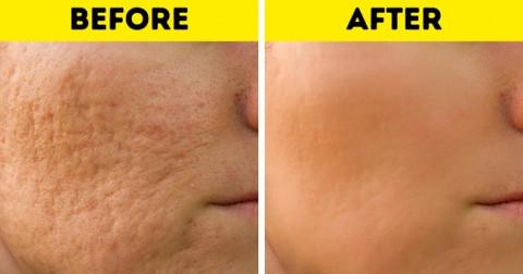 10 cách làm lành sẹo hiệu quả