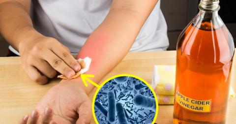 10 phương pháp đã được kiểm chứng giúp cải thiện các bệnh về da